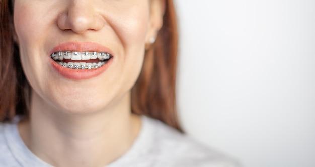 Das lächeln eines jungen mädchens mit zahnspangen auf den weißen zähnen. zähne glätten sich.