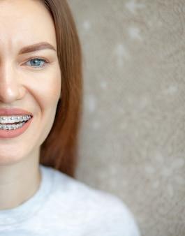 Das lächeln eines jungen und schönen mädchens mit zahnspangen auf ihren weißen zähnen. begradigung schiefer zähne mit hilfe eines bracketsystems. malokklusion. zahnpflege. glatte zähne und ein schönes lächeln