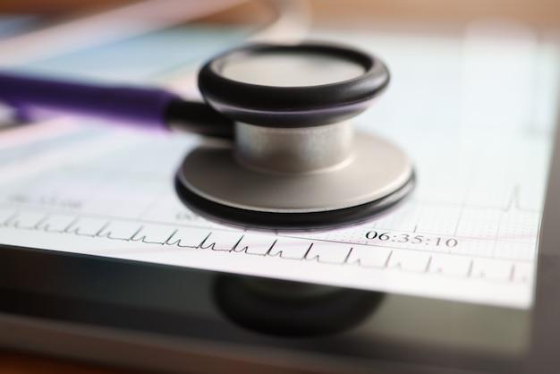 Das stethoskop liegt auf dem kardiogramm