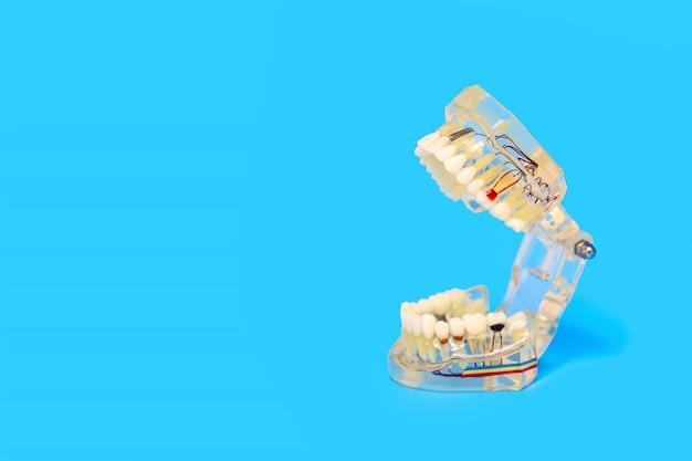 Das trainingsmodell des kiefers und der zähne zur zahnarztpraxis auf blau