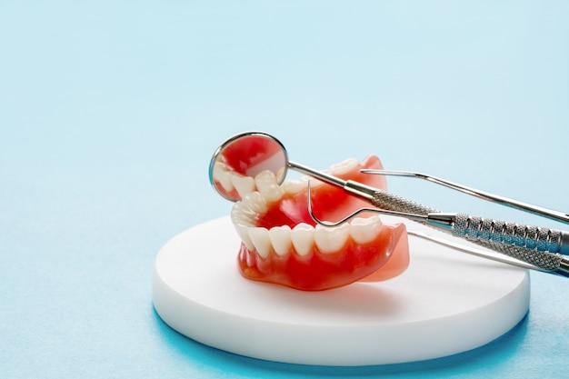 Das zahnmodell, das ein implantatkronen-brückenmodell zeigt, zeigt das modell der zahnärztlichen demonstrationszahnstudie.