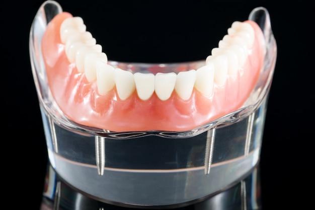 Das zahnmodell zeigt ein implantatkronenbrückenmodell / eine zahnärztliche demonstration.