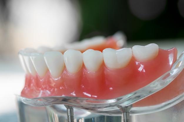 Das zahnmodell zeigt ein implantatkronenbrückenmodell / eine zahndemonstrationszahnstudie.