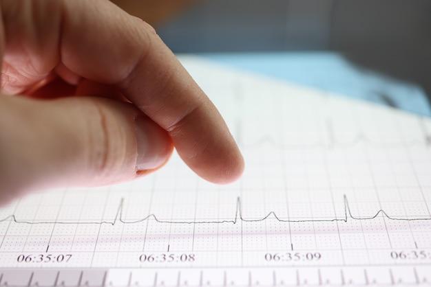 Daumen über tablette mit herz-kardiogramm-bild. herzuntersuchungs- und diagnosekonzept