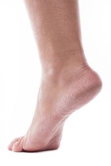 Dehydrierte haut an den fersen weiblicher füße