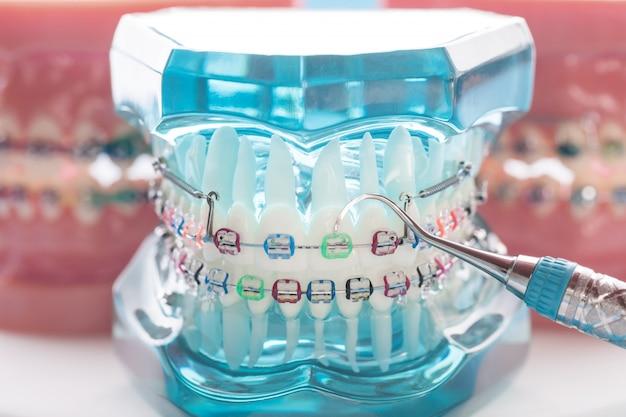 Demonstrationszahnmodell von varianten der kieferorthopädischen klammer oder zahnspange