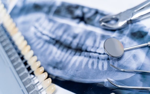 Dental pfannenröntgen, gebiss und zahnärztliche instrumente. künstlicher kiefer auf weißem hintergrund.