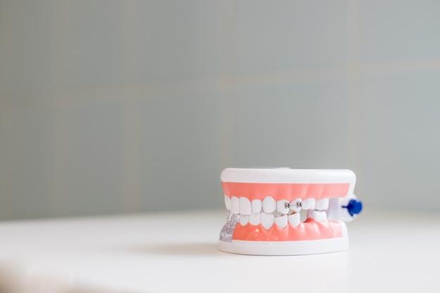 Dental zahnmedizin. modell zeigt zähne, wurzeln, zahnfleisch, zahnfleischerkrankungen, karies und plaque.