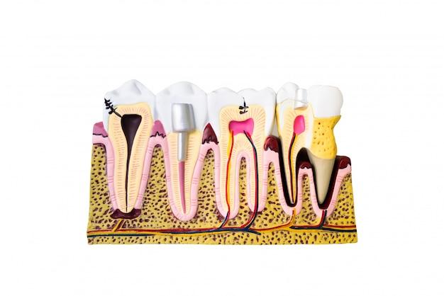 Dentalmodell für die patientenaufklärung
