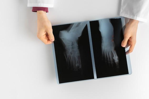 Der arzt hält die röntgenaufnahme des menschlichen körpers und untersucht die knochen