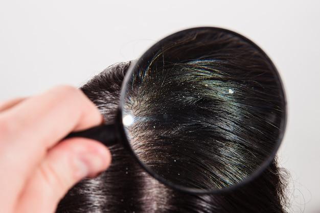 Der arzt schaut durch eine lupe auf die schuppen auf dunklen weiblichen haaren