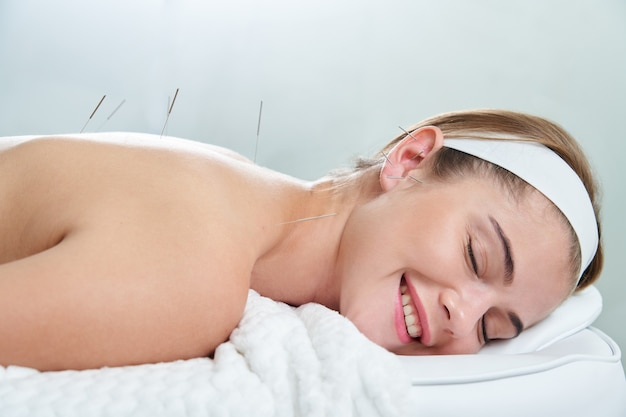 Der arzt setzt nadeln in die weibliche akupunkturbehandlungstherapie in der spa-salon-alternative ein