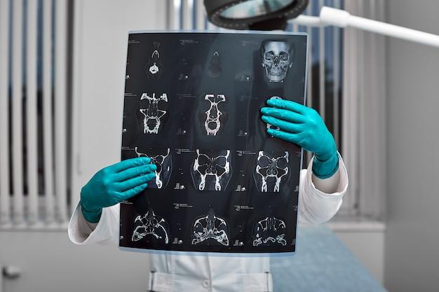 Der arzt untersucht aufmerksam den mrt-scan des patienten.
