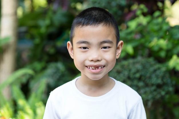 Der asiatische junge mit gebrochenem zahn im garten