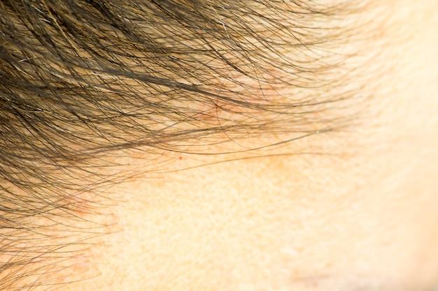 Der haaransatz und die kopfhaut schließen sich, dermatologische erkrankungen, hautprobleme