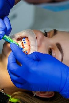 Der kieferorthopäde setzt metallspangen auf die zähne des patienten. kieferorthopädische zahnbehandlung. foto in hoher qualität
