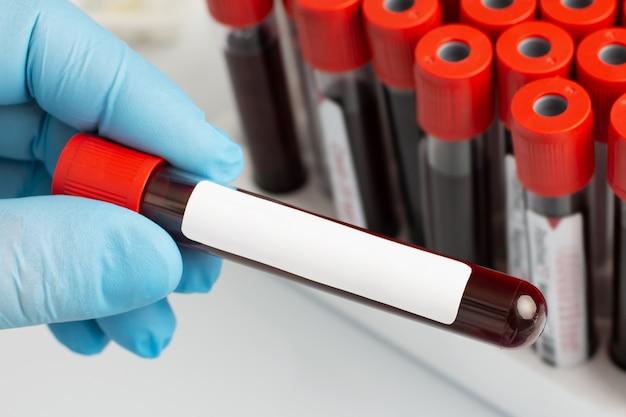Der laborant hält ein blutreagenzglas mit einem kopierraum für die beschriftung