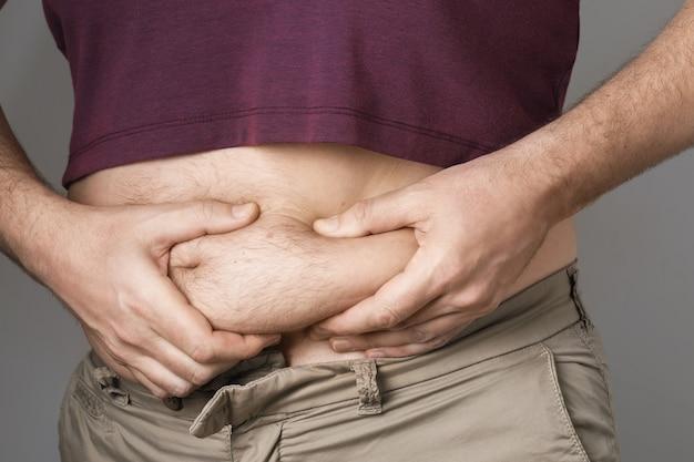 Der mann zeigt probleme mit übergewicht im bauch