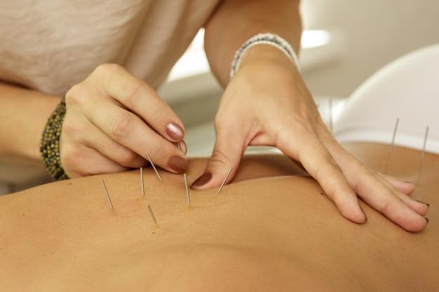 Der meister injiziert stahlnadeln während der akupunktur