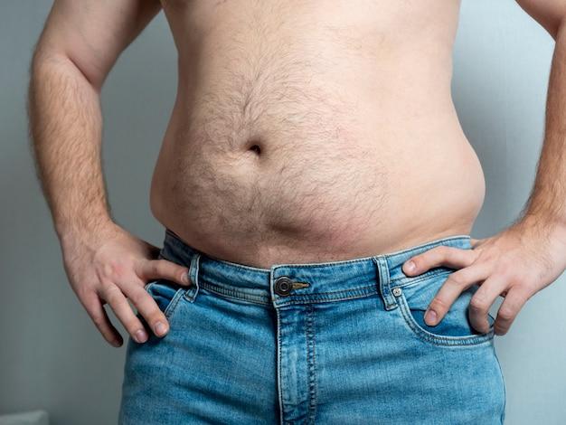 Der nackte bauch eines dicken mannes in jeans. das konzept der probleme mit übergewicht
