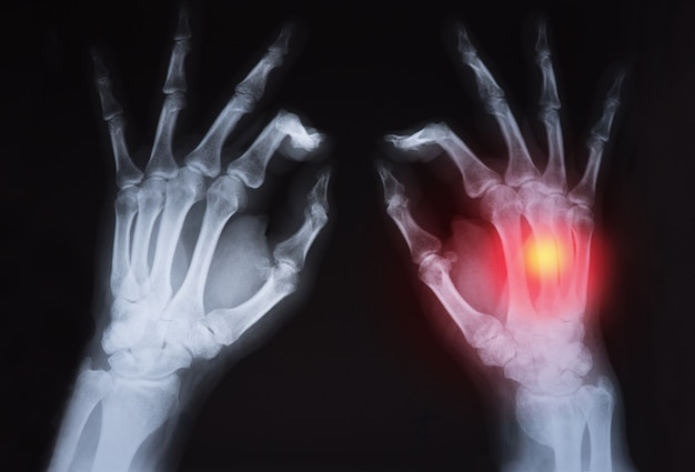 Der röntgenstrahl der menschlichen hand ist rot hervorgehoben.