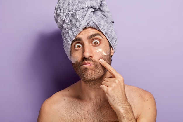 Der überraschte mann bemerkt akne im gesicht, kümmert sich um ein gutes aussehen und trägt anti-aging-pads unter den augen auf
