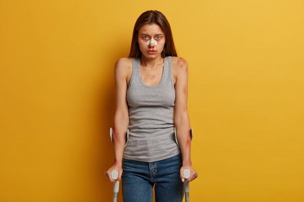 Der verletzte verwundete teenager hat verschiedene blutergüsse, ein hämatom nach einem unfall