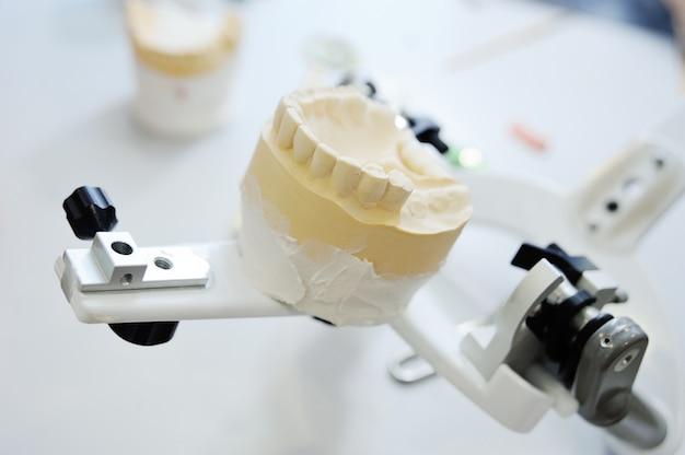 Der zahnarzt macht eine prothese