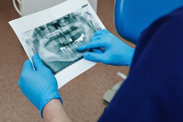 Der zahnarzt untersucht das ergebnis der röntgenaufnahme des patienten