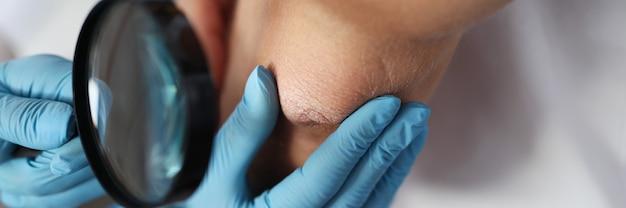 Dermatologe untersucht die hand des patienten durch eine lupe