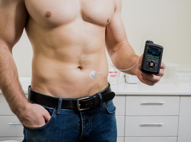 Diabetiker mit einer insulinpumpe, die in seinem bauch angeschlossen ist und die insulinpumpe hält