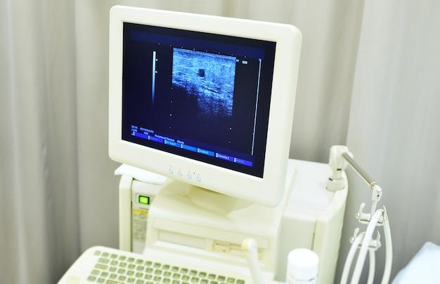 Diagnose von krampfadern, das ergebnis einer ultraschalluntersuchung der venen des patienten auf dem bildschirm.