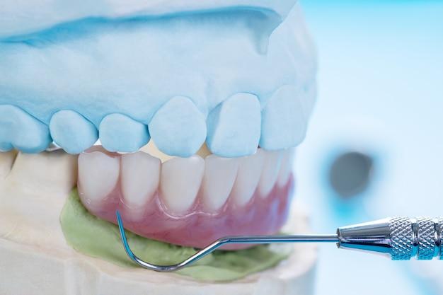 Die arbeiten an zahnimplantaten sind abgeschlossen und einsatzbereites temporäres abutment für zahnimplantate