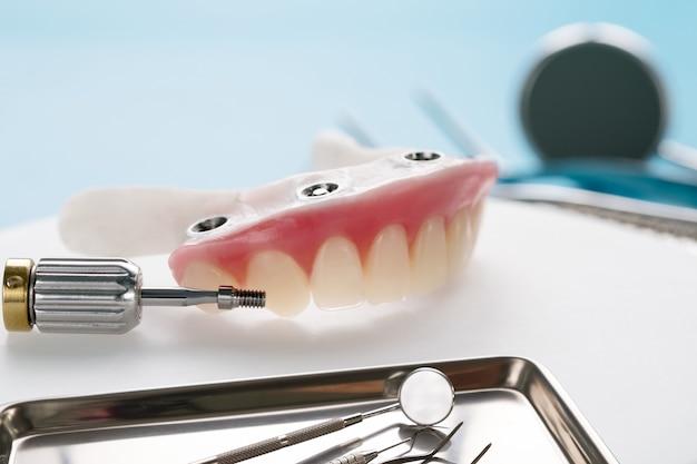Die arbeiten an zahnimplantaten sind abgeschlossen und gebrauchsfertig / temporäres abutment von zahnimplantaten