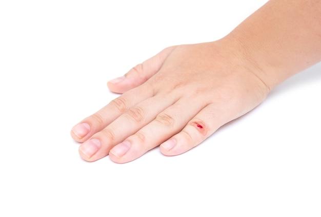 Die hand der frau mit wunde auf finger auf weißem hintergrund