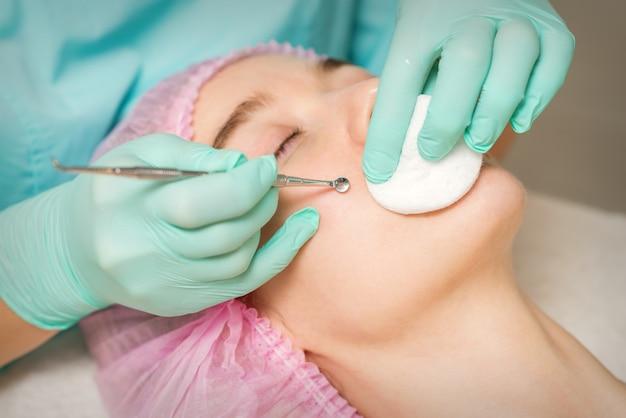 Die kosmetikerin entfernt mitesser und akne auf dem weiblichen gesicht in einem schönheitssalon, mitesserentfernungswerkzeug.