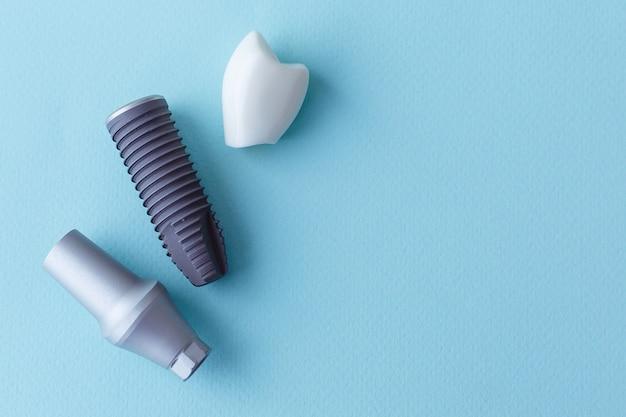 Dieses modell zeigt, dass die zähne verschlossen wurden und der rostfreie stift im zahnfleisch. blauer hintergrund