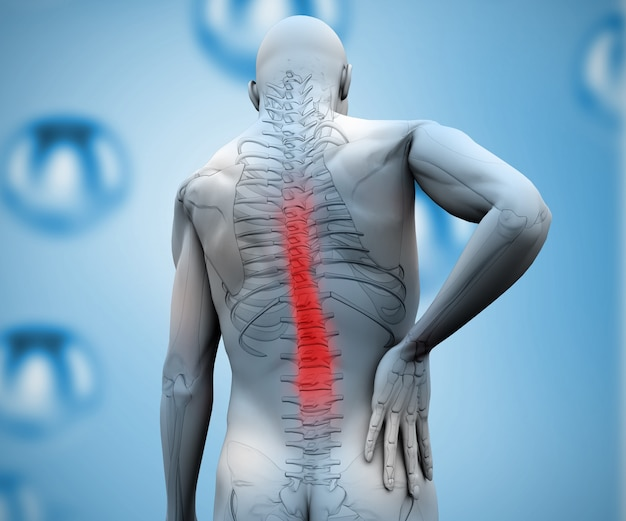 Digitale figur mit hervorgehobenen rückenschmerzen