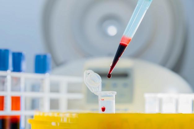 Dna-test im labor. ein tropfen blut