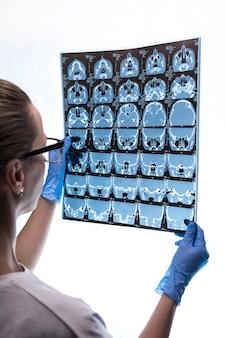 Doktor, der ein röntgen des gehirns eines patienten überprüft.