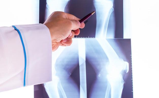 Doktor, der röntgenstrahlen der hand studiert