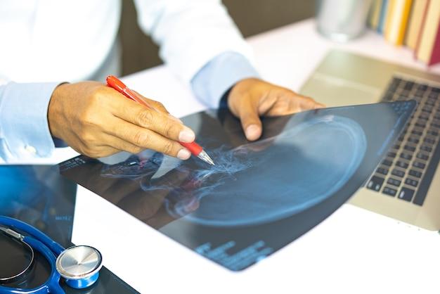 Doktor, der röntgenstrahlergebnisse betrachtet