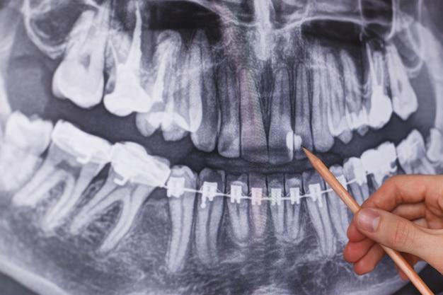 Doktor, der zahnmedizinischen röntgenstrahl hält und betrachtet