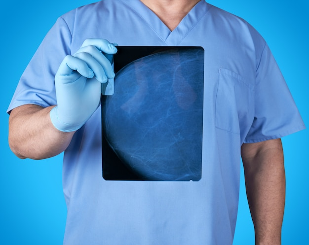 Doktor in den blauen uniform- und latexhandschuhen, die einen röntgenstrahl der brustdrüse eines patienten halten
