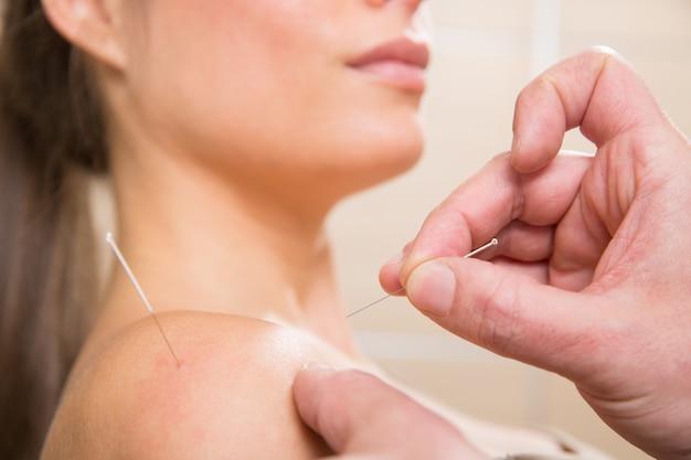 Doktor übergibt die akupunkturnadel, die auf frau sticht