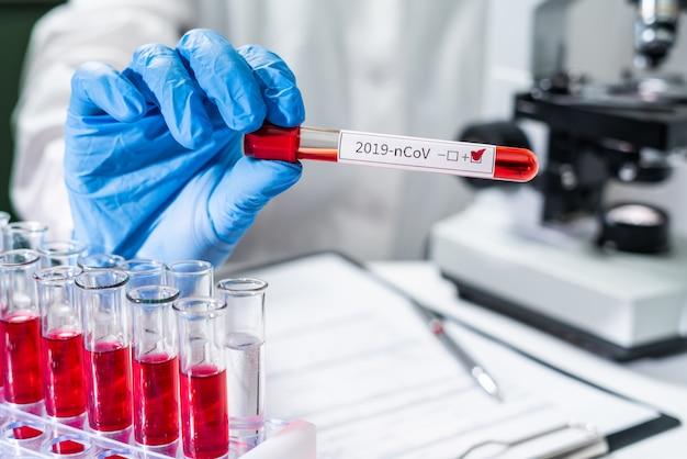 Ein arzt führt eine blutuntersuchung für das neue 2019-ncov-coronavirus aus china durch. pipettieren sie flüssigkeit in eines von mehreren reagenzgläsern.