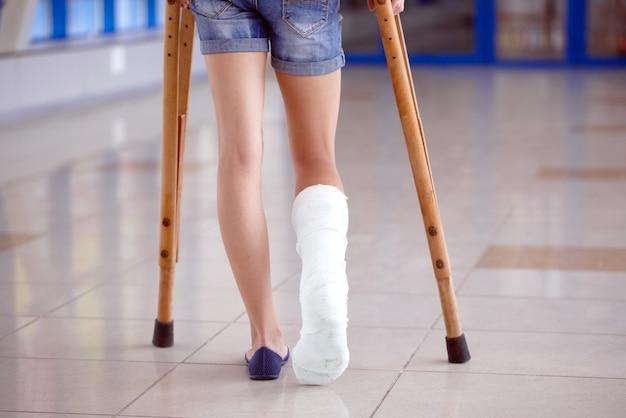 Ein junges mädchen sitzt auf krücken im flur des krankenhauses.