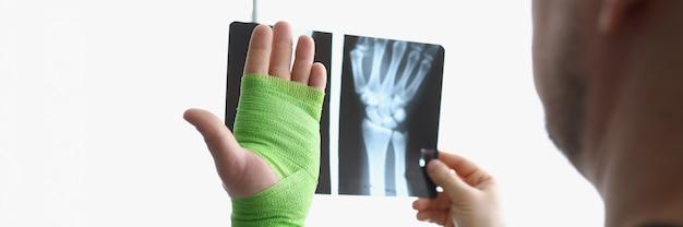 Ein mann betrachtet ein röntgenbild und einen verletzten arm in einem verband ein mann denkt über traumata und behandlungen nach