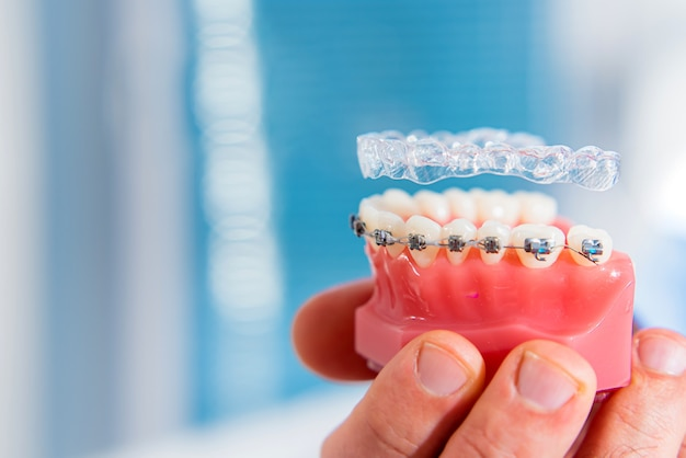 Ein mann hält in der hand ein modell eines kiefers mit zähnen, über denen zahnspangen und aligner schweben