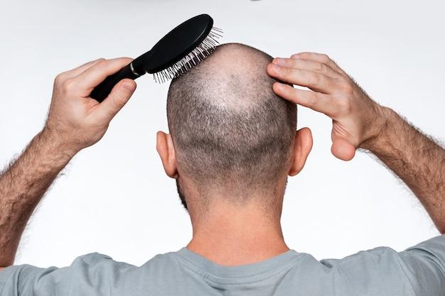 Ein mann hält seine hände an seinen kahlen kopf und kämmt alopezieherde mit einem kamm. rückansicht. konzept der alopezie